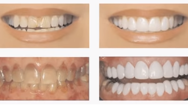before and after getting veneers