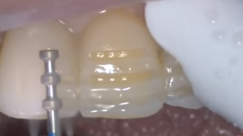 ceramic veneers preparation