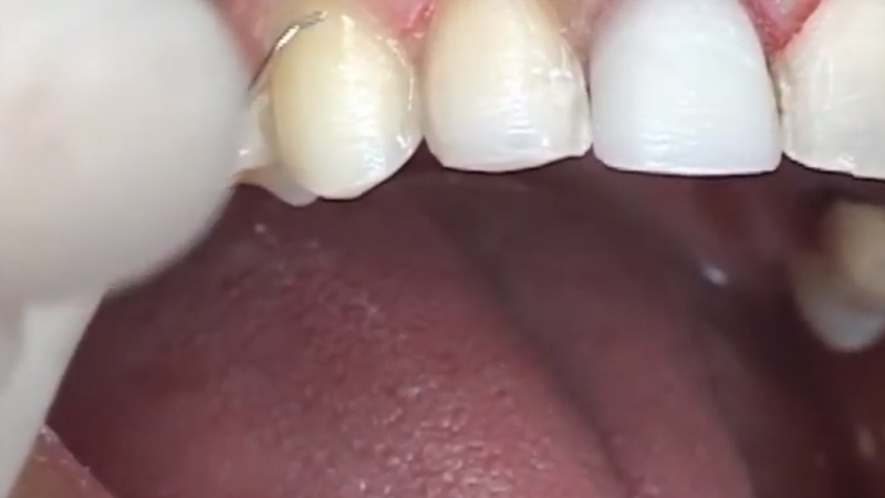 porcelain veneers preparation