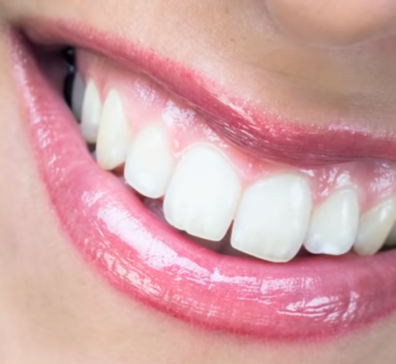 5 Things You Should Know Before Getting Veneers