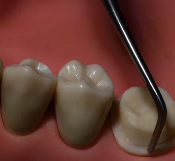 Veneers or Crowns: Which is a Better Option?
